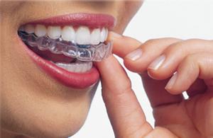 Bite dentale - dentista Fiume Croazia
