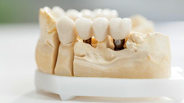 Le corone dentali - clinica dentale Tina Babić - Fiume Croazia
