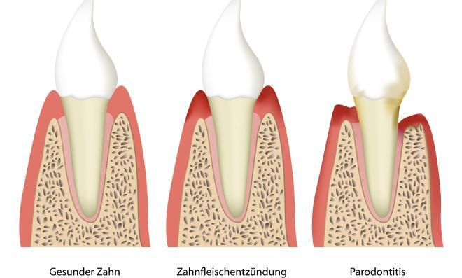 Parodontologia - stomatologo - Fiume
