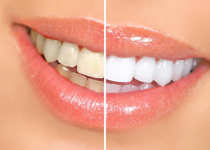 Sbiancamento dei denti - dentista Fiume Croazia