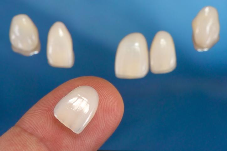 La faccette dentali - clinica dentale Fiume Croazia
